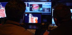 monitoring_surgery_videos