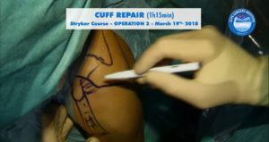 scrsht_OP2_Stryker_course_2018-03-19_Alps-Surgery-Institute