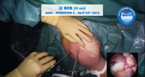 scrsht_OP6_AASA_2018-04-23_Alps-Surgery-Institute