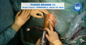 scrsht_OP6_Stryker_course_2018-03-19_Alps-Surgery-Institute