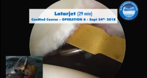 scrsht_OP6_ConMed_course_2018-09-24_Alps-Surgery-Institute