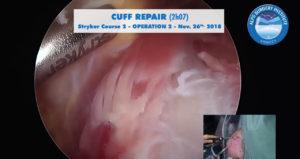 scrsht_OP2_STRYKER2_course_2018-11-26_Alps-Surgery-Institute