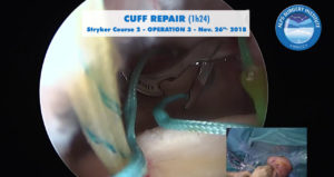 scrsht_OP3_STRYKER2_course_2018-11-26_Alps-Surgery-Institute