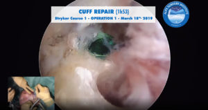 scrsht_OP1_STRYKER1_course_2019-03-18_Alps-Surgery-Institute